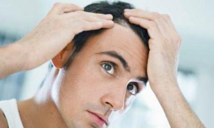 Perché perdiamo i capelli?