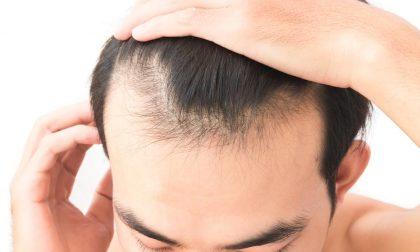 Rimedi per la caduta dei capelli