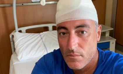 Incidente per Giulio Gallera: gioca a paddle con amici, cade e si ferisce alla testa