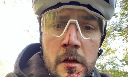 Ferito al volto da un filo spinato teso sui colli di Città Alta: il video e la rabbia di un ciclista