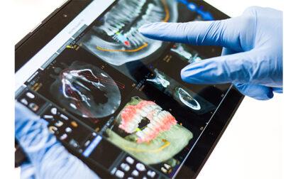 Perdita dei denti? L'implantologia guidata al computer per tornare a sorridere