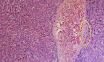 Il primo studio sui danni del Covid-19 al fegato è del Papa Giovanni in collaborazione con Yale