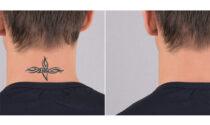 Perché rimuovere un tatuaggio? I 5 motivi più comuni
